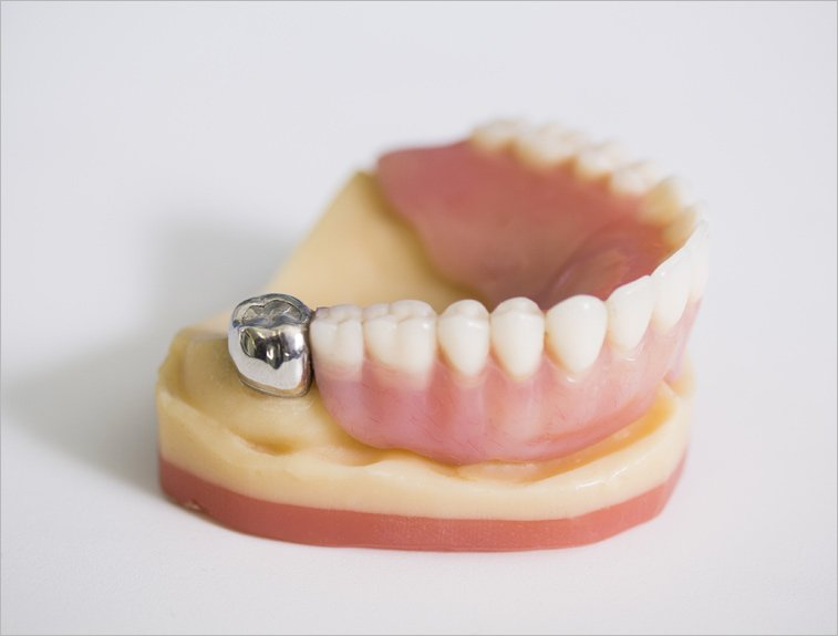 Van Noorden Labs implant retained denture - custom tailored dentures for a clean, natural looking you.