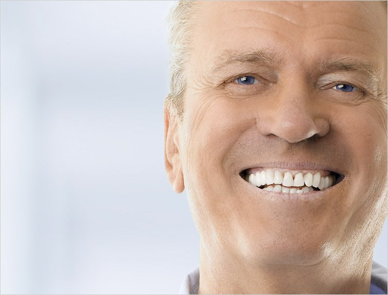 Winning natural smile repair - dentures Eltham